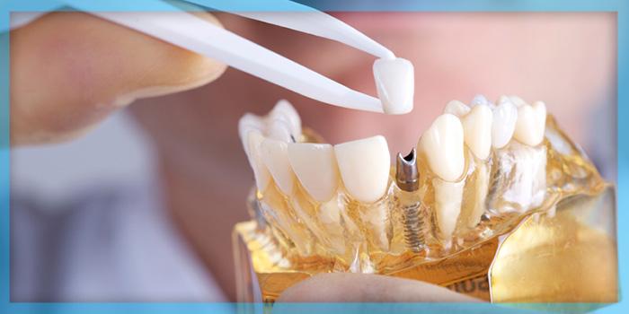 Dental implants,ایمپلنت دندان
