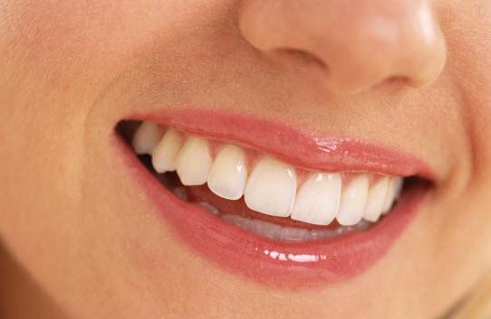 بلیچینگ,سفیدکردن دندان